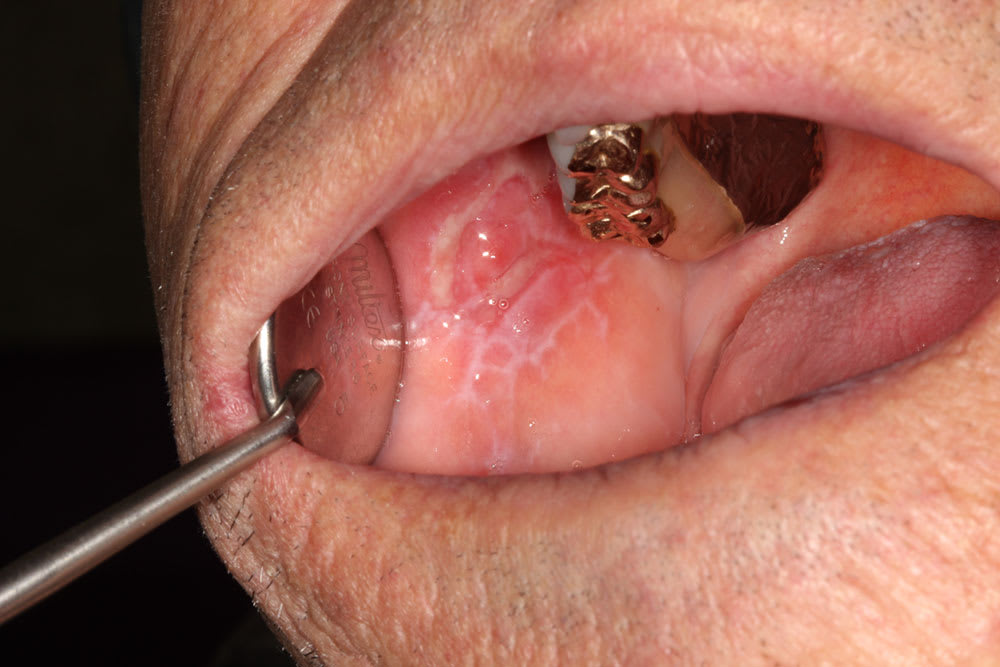Image of oral lichen planus 65-year-old-male.