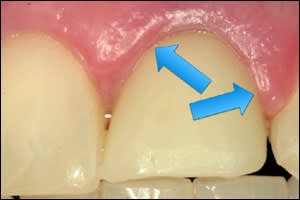 Image: Mucositis, associated with temporary in the mouth. Note color change and rolled gingival margin versus gingival color and contour of the adjacent natural tooth.