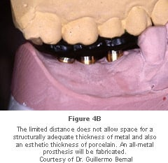 Image: limited space for metal and procelain