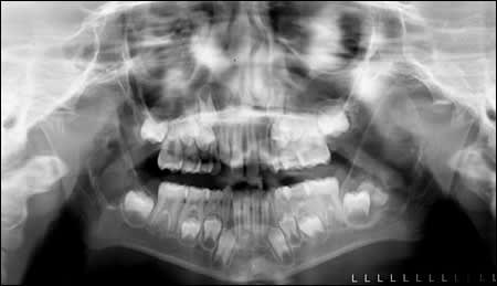 28-month follow-up panoramic radiograph