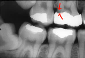 Secondary or Recurrent Caries