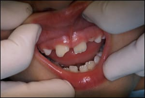 fig05-tooth-fracture