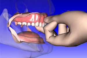 Image: Denture placed and firmly seated.
