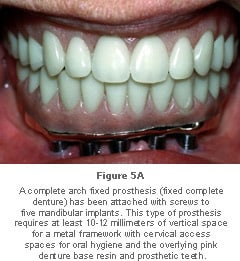 Image: complete arch fixed prosthesis