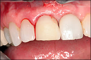 Image: Note bulbous, red, papilla with spontaneous bleeding, distal to #8 implant.