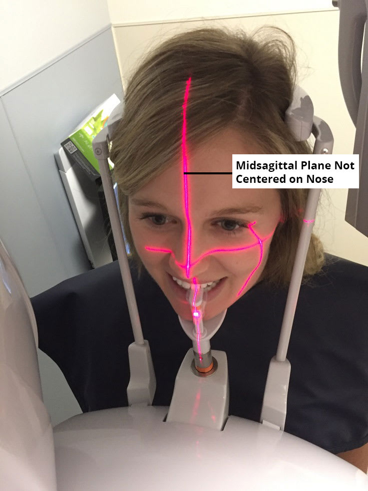 Image of incorrect patient positioning, because the midsagittal plane is not centered along the midline of the face.