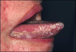 Image showing leukoplakia