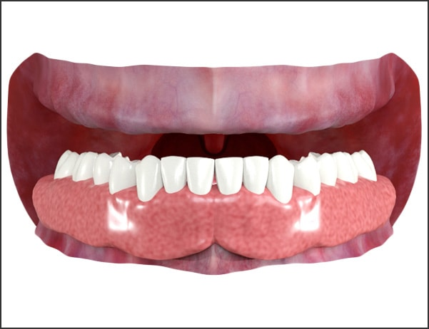 Image showing denture placed and firmly seated