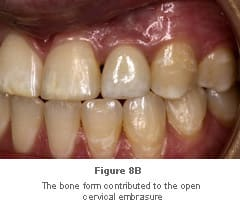 Image: bone form contributing to open cervical embrasure.