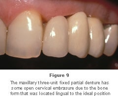 Image: maxillary three-unit fixed partial denture with some open cervical emmbrasure