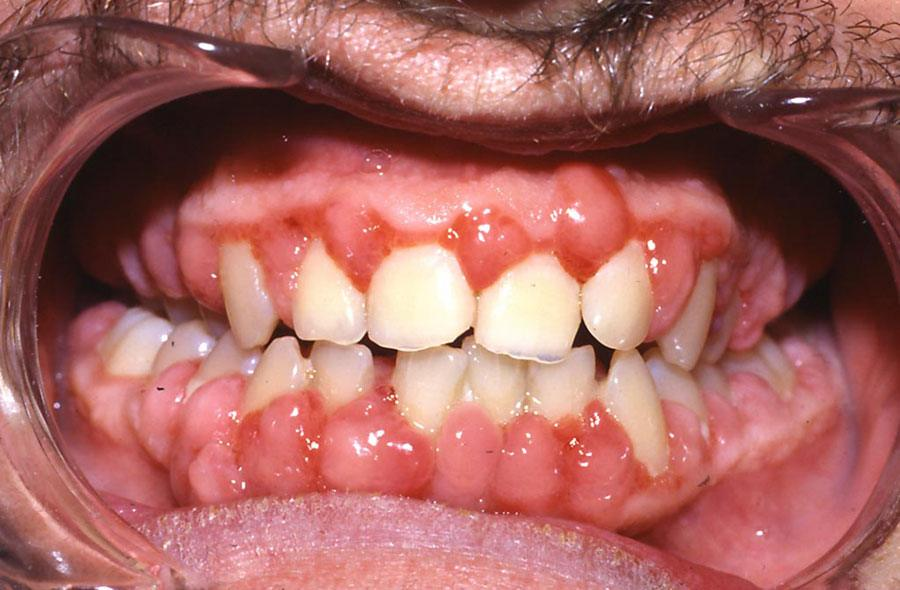 Photo showing cyclosporine-induced gingival overgrowth.