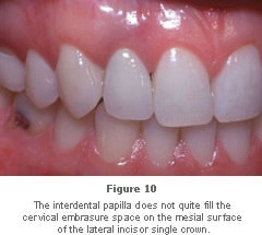 Image: interdental papilla not quite filling the cervical embrasure space.