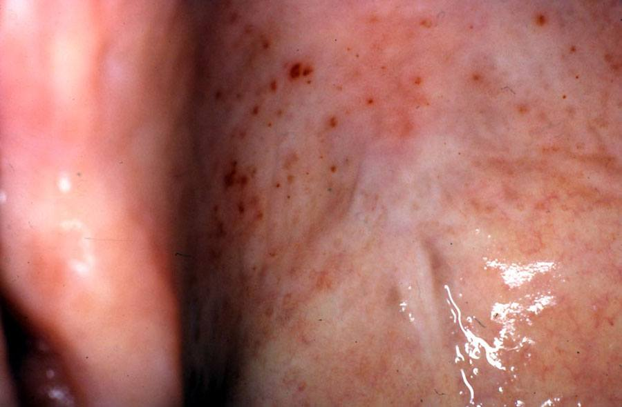 Photo showing ASA-related petechiae.