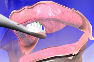 Image: Initial massaging of oral tissues with toothbrush.