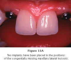 Image: interdental papillae that do not have required height