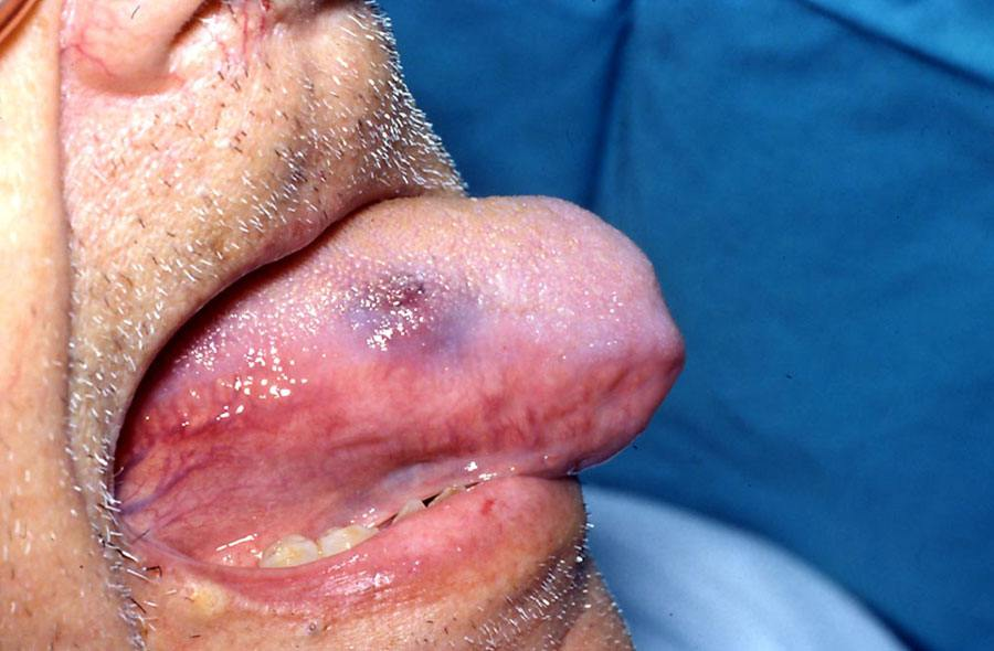 Photo showing ASA/clopedigrel-related purpura.