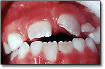 Fractured Permanent Tooth