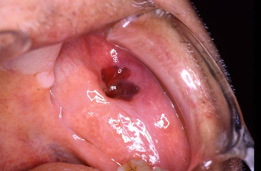 Photo showing warfarin-related ecchymosis.