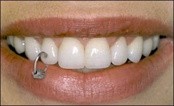 Photograph showing a tooth piercing.