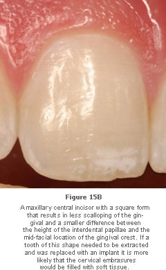 Image: maxillary central incisor with a square form