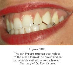 Image: smiling mouth, illustrating effective molding of peri-implant mucosa to the ovate form of the crown