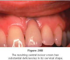 Image: failure to fit a crown properly when the implant is placed too far facially