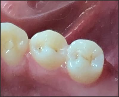 image of deep-occlusal fissures