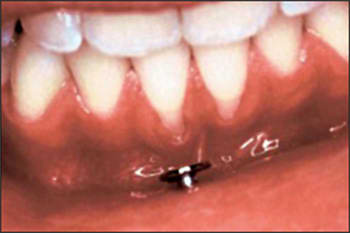 Image: Gingival recession