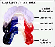 image showing a tri-laminated mouthguard