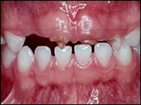 Image: Effects of Early Childhood Caries