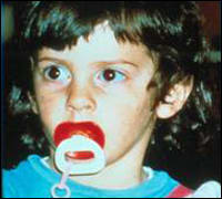 Image: Child with pacifier in mouth.
