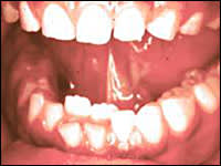 Image: Over-retained Teeth
