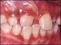 Image: Over-retained Teeth - maxillary arch