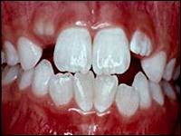 Image: Teeth with orthodontic problems.