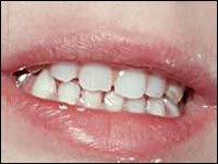 Image: Picture of teeth that have been replaced with an appliance.