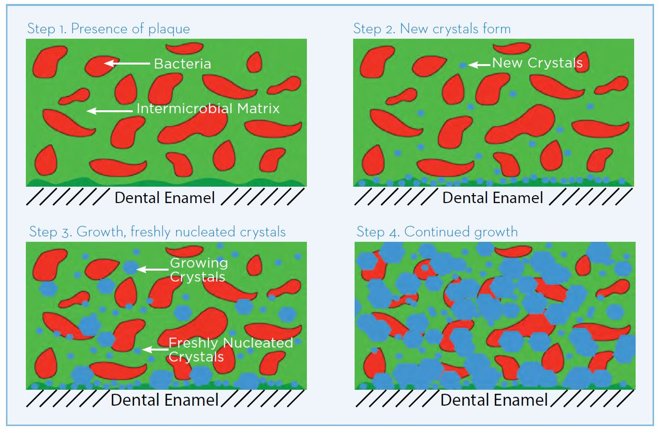 Formation of dental calculus