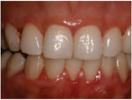 Gingivitis with redness and swelling