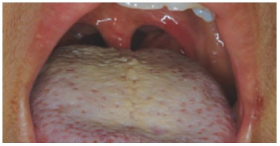 Coating on tongue and heavy bacterial load