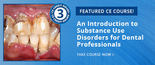 Featured CE Course - An Introduction to Substance Use Disorders for Dental Professionals