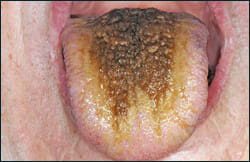 Image: Hairy Tongue
