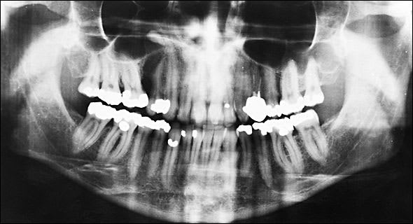 preoperative panoramic radiograph