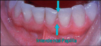 img19-interdental-papilla