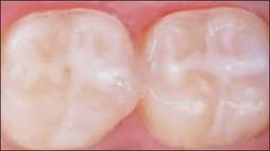pit and fissure sealants.