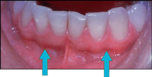 img24-mucogingival-junction