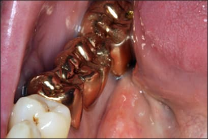 gold dental bridge.