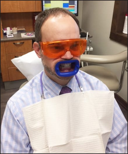 patient with mouth isolated for teeth bleaching.
