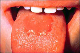 Image: Median Rhomboid Glossitis