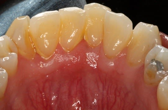 Light supragingival calculus