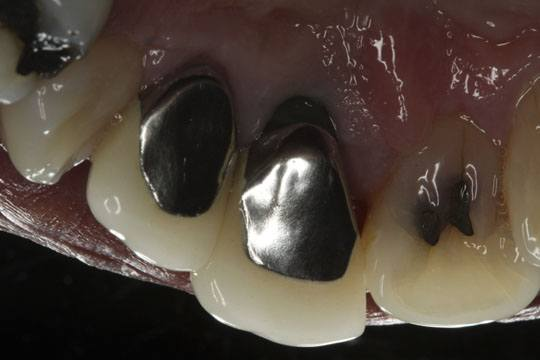 Lingual View Endosseous Implant