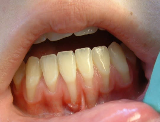 Mucogingival defect 2
